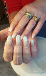 nails replaced or filled